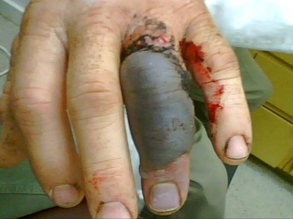 Warning Graphic Pics Ring Finger Injury Pictures Ranchers