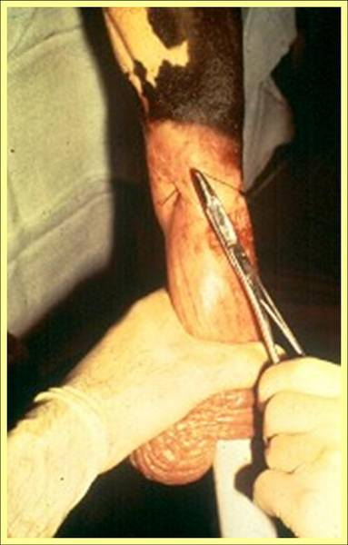 Adult Circumcision Procedure http://www.cattletoday.com/forum/viewtopic.php?f=17&t=55666